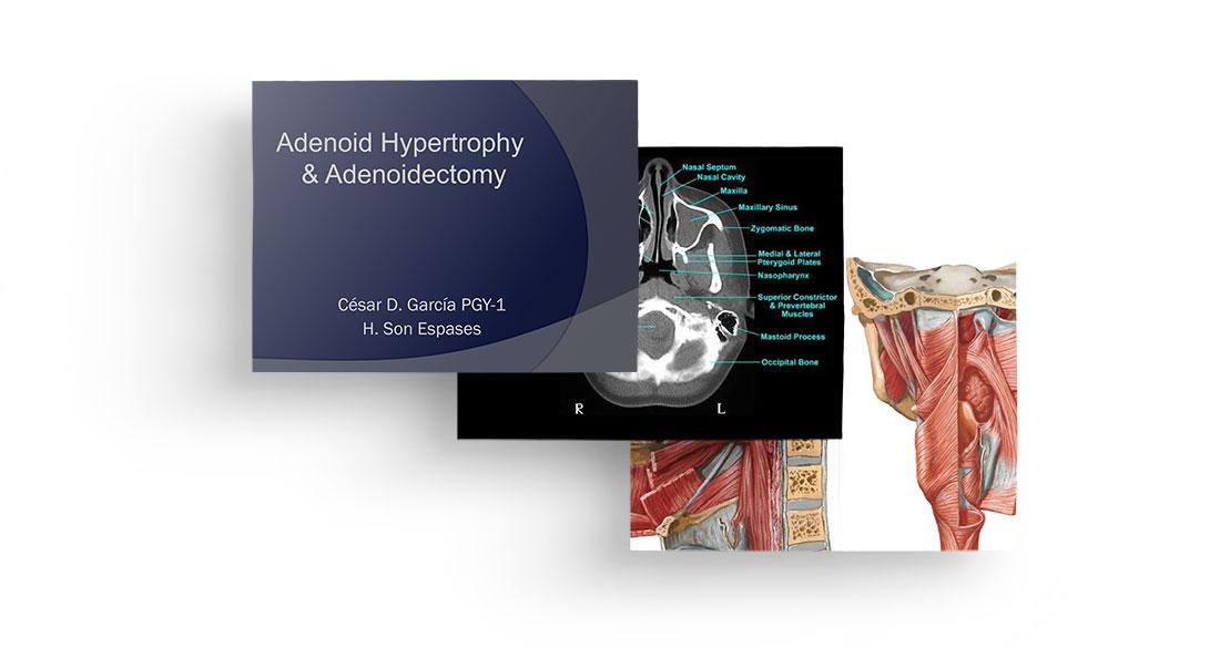 Adenoid hypertrophy & adenoidectomy