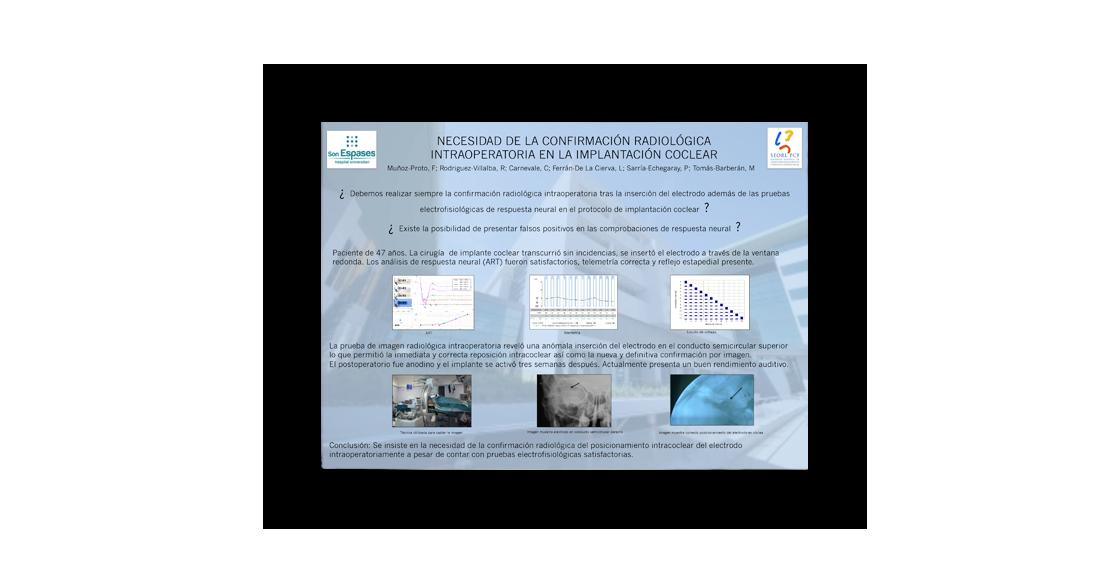 Necesidad de la confirmación radiológica intraoperatoria en la implantación coclear