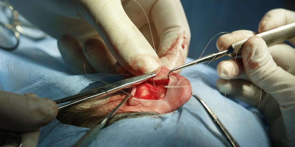 Simposio Internacional: Cirugía endoscópica del oído y avances ...